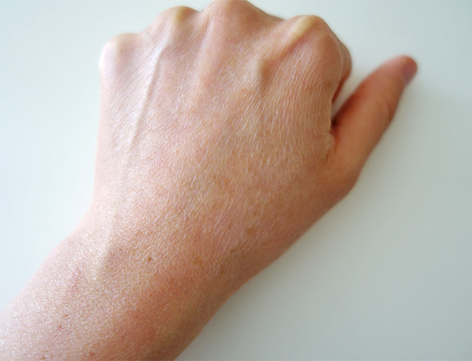 my hand after the holiday